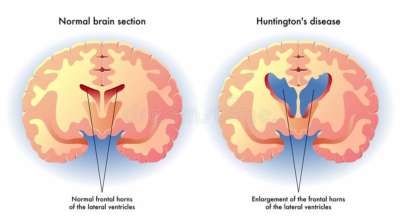 CBD for Huntington\'s Disease - The Real Truth | Cheef Botanicals