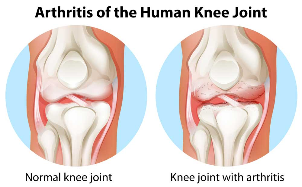 CBD oil for arthritis of the knee good diagram