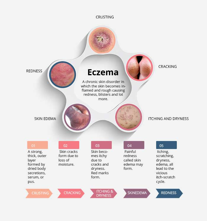 Using CBD for Eczema - The Best Working Solution | Cheef