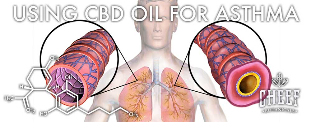 Using CBD for Asthma