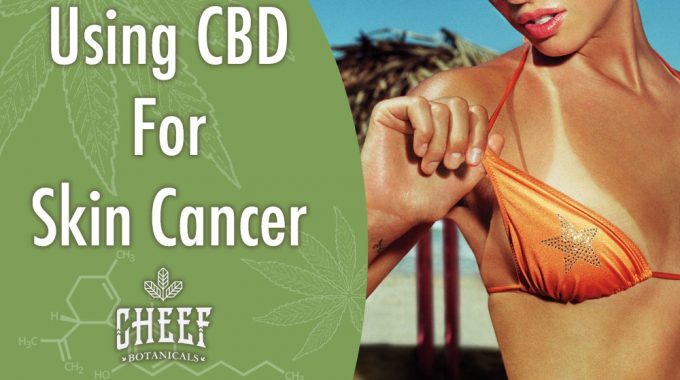 Using CBD For Skin Cancer Tan Line