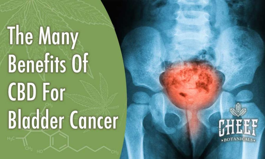 The Many Benefits Of CBD For Bladder Cancer Header